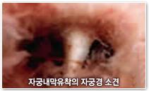 자궁내막유착의 자궁경 소견