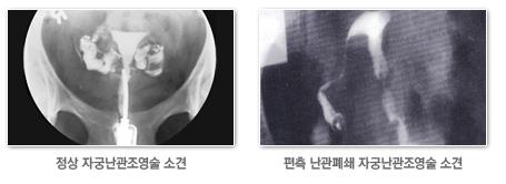 왼쪽은 정상 자궁난관 조영술 소견 오른쪽은 편측 난관폐쇄 자궁난관조영술 소견