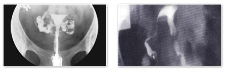 一侧卵管关闭子宫卵管造影术所见
